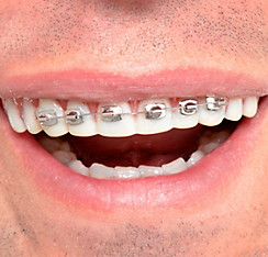 Fool-All Braces Teeth