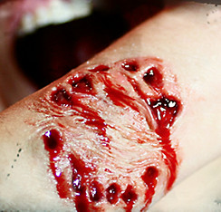 Vampire Bite Wound Prosthetic